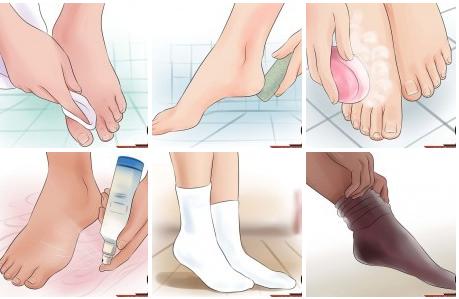 2017 02 26 110409 - علاج رائحة القدم والحذاء الكريهة