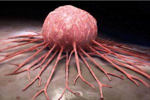 علاج مرضى السرطان في 42 يوم بهذا المشروب السحري الرائع