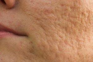 كيفية علاج الحفر في الوجه