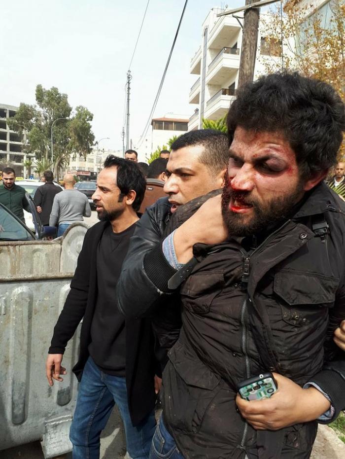image 2 - شاهد بالفيديو لحظة إلقاء القبض على منفذ عملية سطو البنك العربي في عمّان