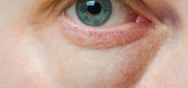 طرق للتخلص من الإنتفاخ تحت العين