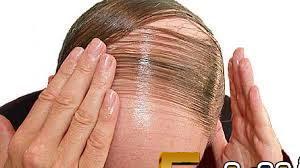 طرق لمحاربة الصلع و لإيقاف تساقط الشعر