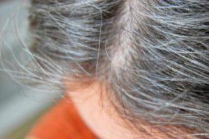 علاج الشيب المبكر بوصفة سحرية بمكونات طبيعية