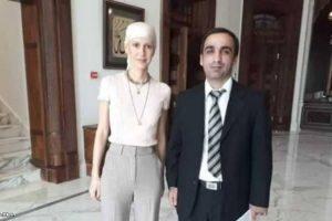 بالصور آثار العلاج تظهر على  أسماء الأسد