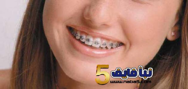 دعائم تقويم الاسنان