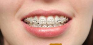 كيفية تخفيف الم دعائم تقويم الاسنان