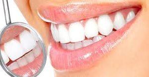 تبييض الأسنان..وصفات طبيعية من المنزل لأسنان بيضاء وبراقة