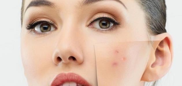 افضل اقنعة الوجه لعلاج ندبات حب الشباب