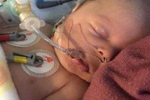نجاة طفل من 3 نوبات قلبية سببتها نقطة حليب